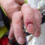 Le mani al termine della scalata.